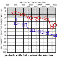 Audiogram left acoustic neuroma