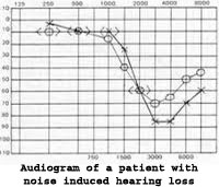 Audiogram noise induced hearing loss